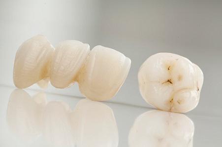 Dentist West Ashley Photo
