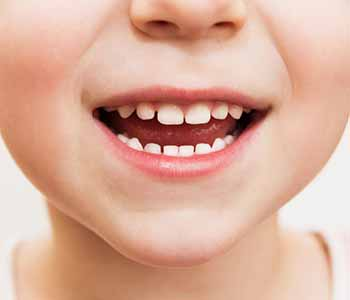The care of your child's teeth and gums