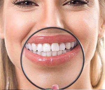 Dr Greenberg explains how dental bonding works