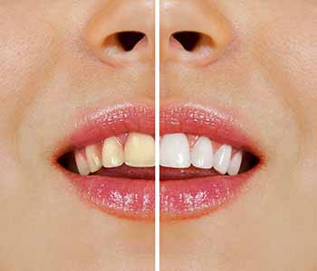 Which West Ashley Area Dental Patients Are Candidates For Teeth Whitening With Dentist Dr. Greenberg?