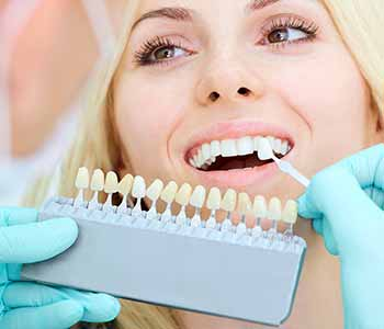 Mouth Carolina Dentistry West Ashley area dentist explains the advantages of porcelain veneers