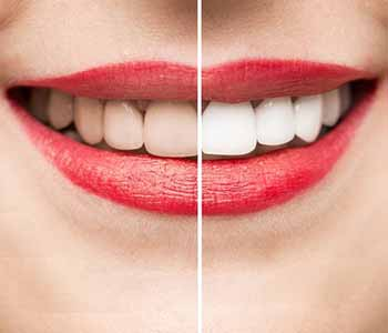 Dr. Greenberg is a dentist in the West Ashley area who offers a variety of cosmetic treatments, including professional teeth whitening.