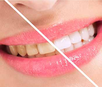 Who Is An Appropriate Candidate For Professional Teeth Whitening Near Charleston?