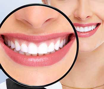 The Teeth Whitening Options Available To Patients In And Around The West Ashley SC Area