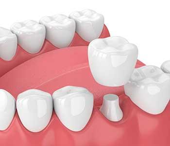 Tooth Crowns Charleston Dentist