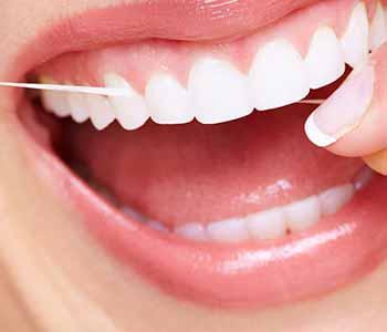 Veneers for Teeth in Charleston Dentist