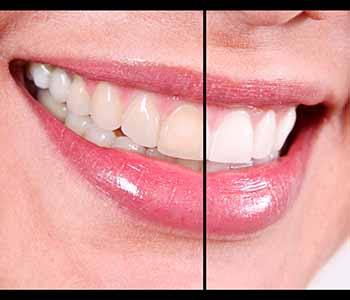 Patients In Charleston SC See Whiter Teeth Courtesy Of Take-Home Whitening Trays