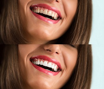 Your skilled cosmetic dentist follows your transition before and after cosmetic dentistry
