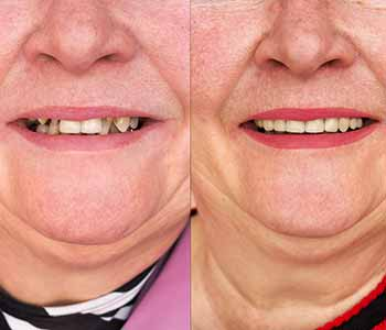 Before and After Dental Bridges Charleston Photo