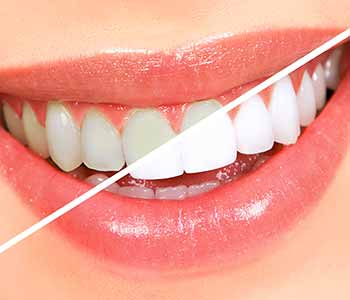 The Difference Between Before And After Teeth Whitening Is Astonishing