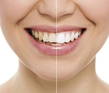 Dr Greenberg providing Examples of Cosmetic Dentistry Procedures?