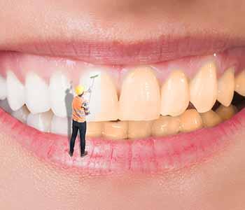 Best Teeth Whitening Charleston Photo