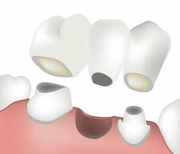 The process for bridges on teeth
