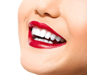 Dr Greenberg Explains how Success of dental bonding depends on skill, you can benefit from Charleston dentist's artistry