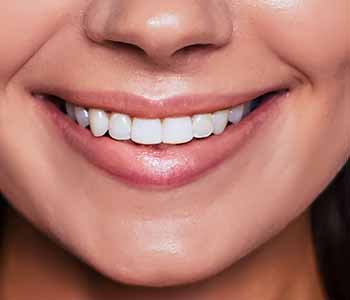 Home Whitening Is One Of The Most Popular Charleston Dental Services