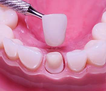 Dentist explains cosmetic crowns