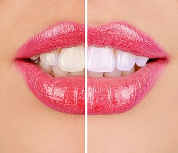 Dr Greenberg improves smiles and quality of life with attractive treatments, restorations
