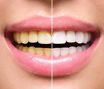 What Is The Safest Whitening Procedure A Charleston Dentist Can Offer?