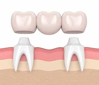The bonding process of dental bridges onto a surrounding tooth