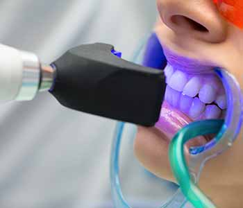 What Is Involved In A Tooth Whitening Procedure?
