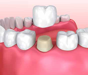 What can expect during dental crown cementation