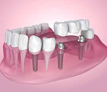 Dentist Charleston - Is the bridge treatment painful