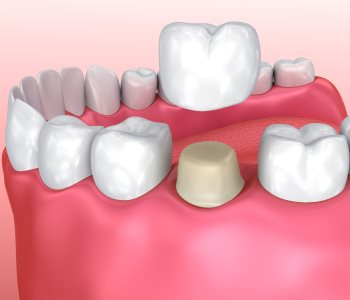 Dental Crown faq from dentist in Charleston