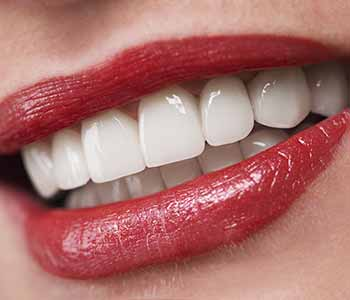 Why Is A Dental Teeth Whitening Much More Effective With A Charleston Area Dentist?