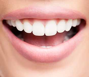 Dental Veneers in West Ashley - Brighter teeth with nice smile