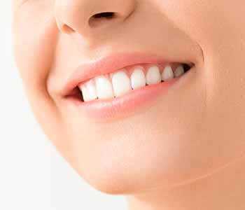 Dentist Charleston - Bridge Result Before and After