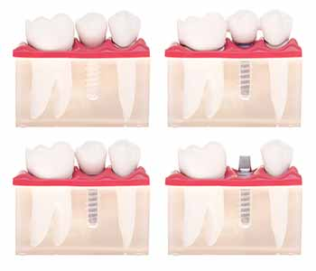 Difference between dental bridge and crown