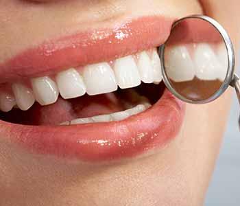 Dentist Veneers West Ashley - nice smile, whiter and brighter teeth