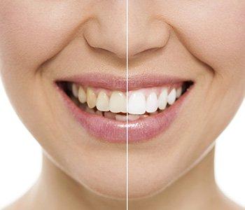 Dr Greenberg Explains effective solutions for smile improvements