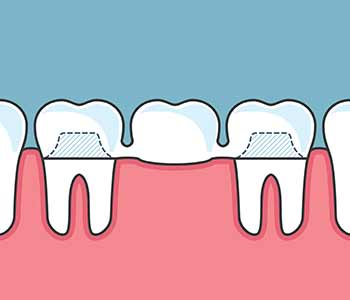 How Do Dental Bridges Work