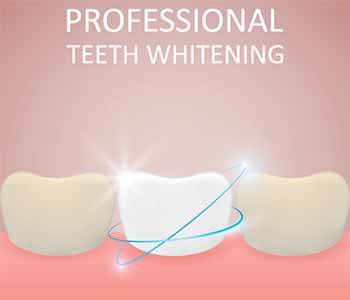 Safest Teeth Whitening Procedure Charleston SC Photo