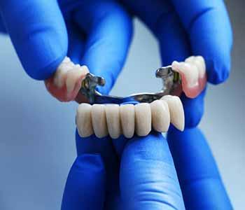 Dentist Charleston - How Are Dental Bridges Made