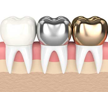 What types of crowns are available