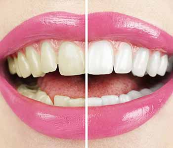 What Are The Side Effects Of Teeth Whitening?