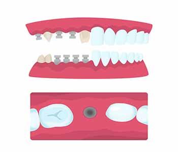 Mouth Carolina Dentistry Types of Dental Bridges