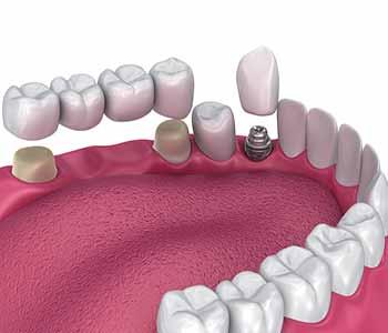 Alternatives to types of dental bridges