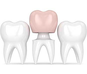 Dentist solves dental problems with Crowns
