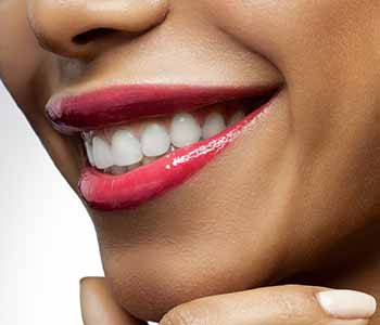 Who Might Benefit From Teeth Whitening In Charleston?