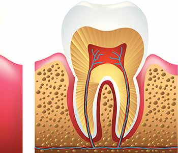 A root canal specialist in Charleston can try to preserve most of your tooth structure, and restore your oral health in a conservative manner.