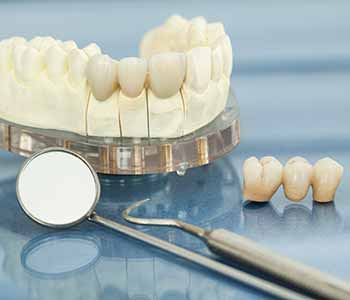 A dental crown is a prosthetic in the shape of a tooth that encapsulates the natural tooth.