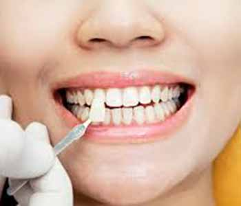 Dr. Andrew Greenberg assesses the patients to determine if they are a suitable candidate for veneers.