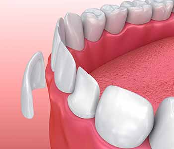 Image of a dental veneers