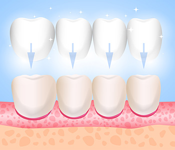 Advantages and Disadvantages of Porcelain Veneers in Charleston, SC area