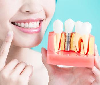 In Charleston area Implant Dentistry