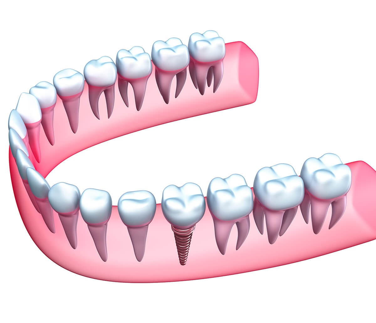 Benefits of Dental Implants in Charleston Sc Area