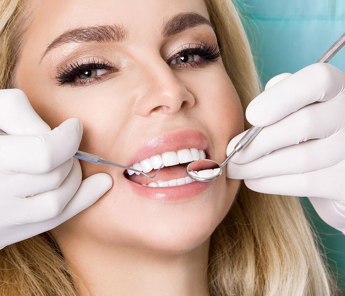 Dental Veneer Service at Mouth Carolina Dentistry in Charleston SC Area
